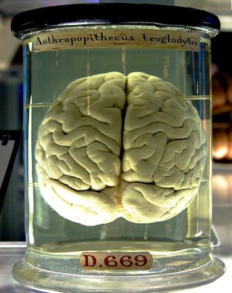 image from darwinian-medicine.com